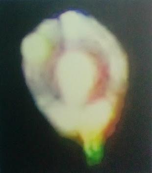Tela canva – Portal